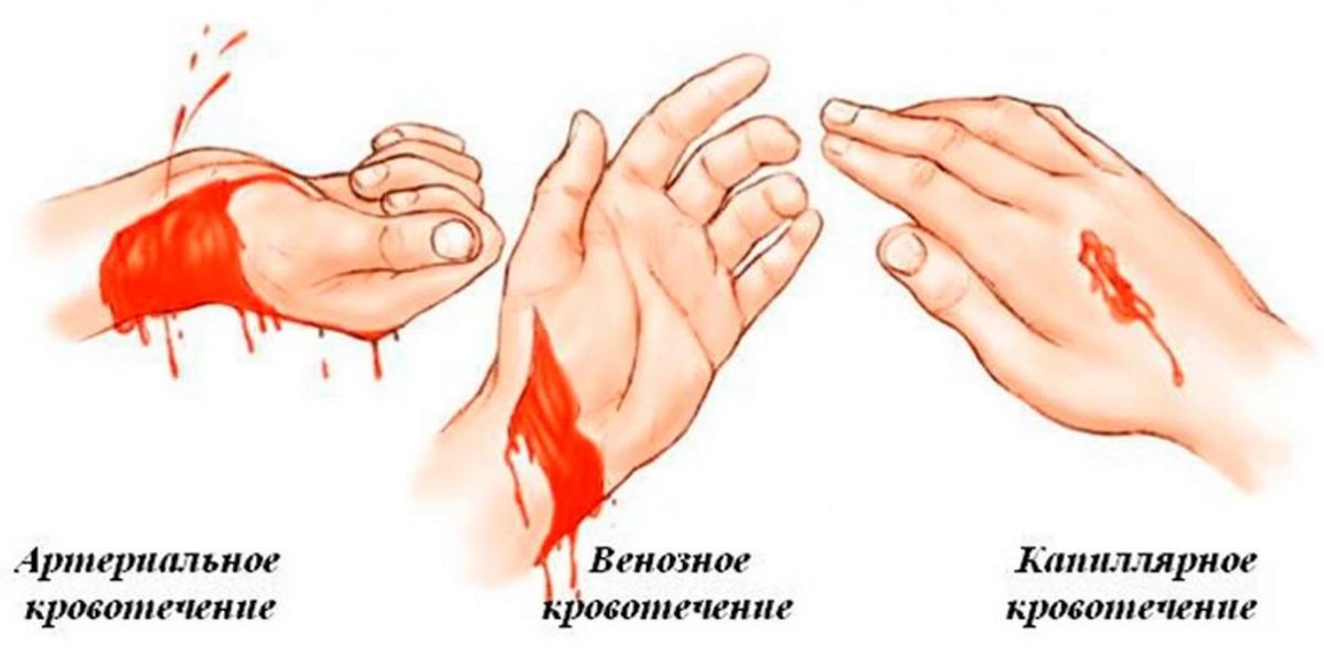 Кровотечения внутренние